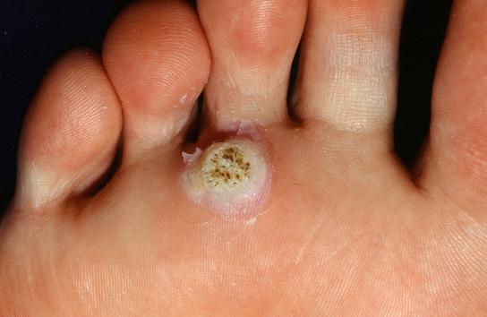 足のウィルス性いぼの写真