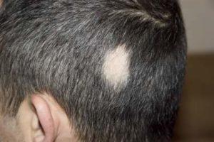 円形脱毛の写真